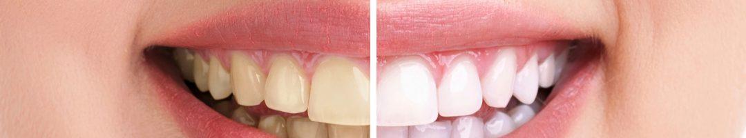 4 aliments qui blanchissent naturellement les dents